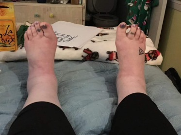 my feet and ankles these days.